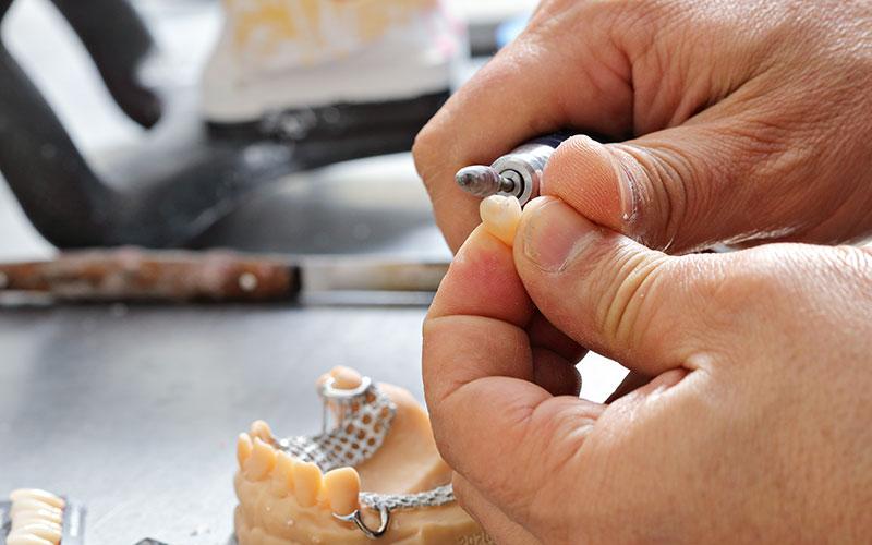 Swiss Denture Concept - Aesthetic Dental and Denture Clinic