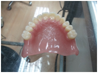 metal-and-allergy-free-dentures-1 - Aesthetic Dental and Denture Clinic