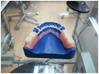 metal-and-allergy-free-dentures-3 - Aesthetic Dental and Denture Clinic