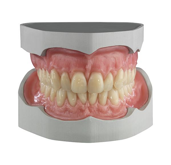 AG_Showcase_Ceramill_D-Wax_03 - Aesthetic Dental and Denture Clinic