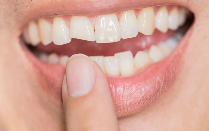 chipped-denture - Aesthetic Dental and Denture Clinic