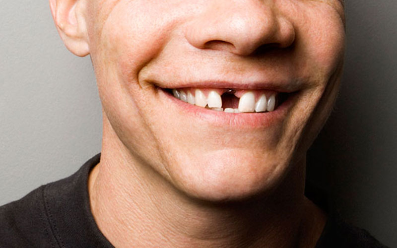 Missing Teeth - Aesthetic Dental and Denture Clinic