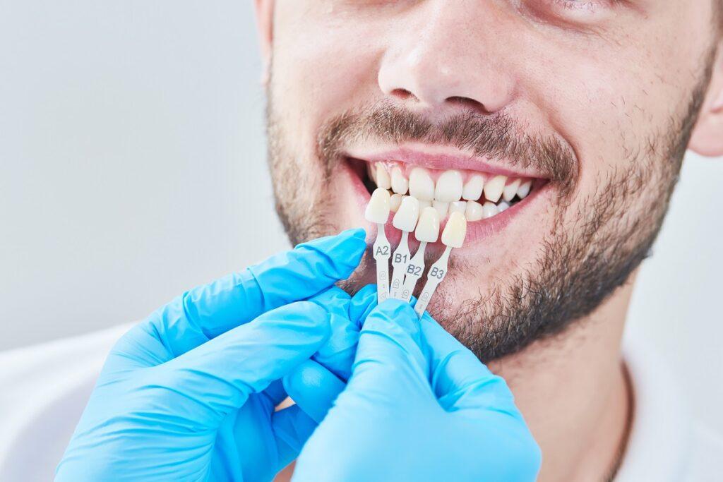 Veneers - Aesthetic Dental & Denture Clinic