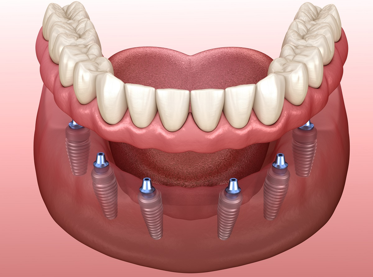 The Ins And Outs Of Implant-Supported Dentures - Denture Clinic